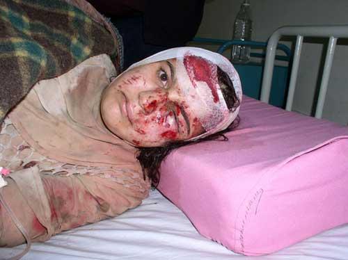 adolescente blessée