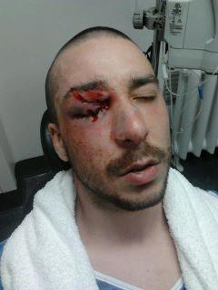 Étudiant atteint à l'oeil par une grenade lancée par la police lors de la manifestation du 7 mars